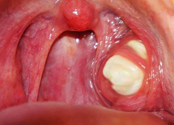 Nguyên nhân và triệu chứng bệnh viêm amidan hốc mủ