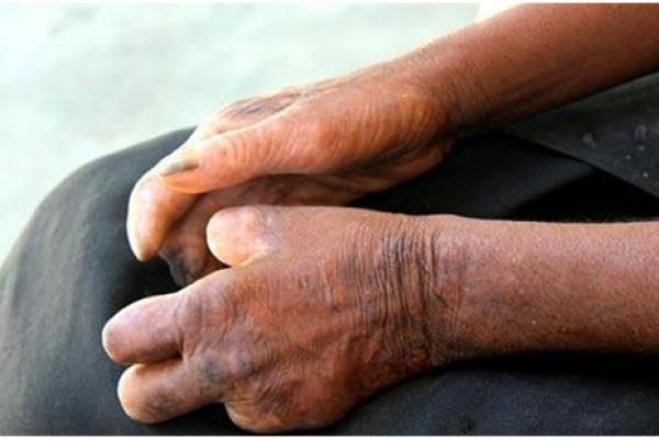 Những điều cần biết về người mắc bệnh phong