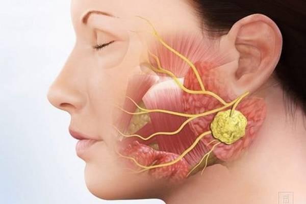 Biểu hiện của bệnh sỏi tuyến nước bọt