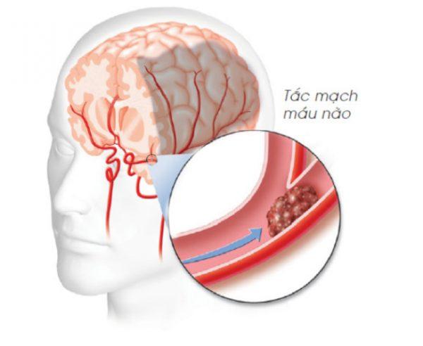 Piracetam có tác dụng rất tốt với người mắc các bệnh về não
