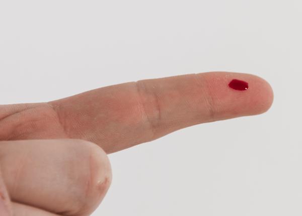 Dấu hiệu phát hiện sớm bệnh ung thư máu