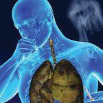 9 dấu hiệu giúp nhận biết sớm ung thư phổi