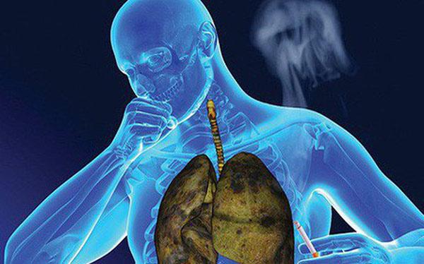 Bệnh nhân ung thư phổi thường có biểu hiện ho kéo dài