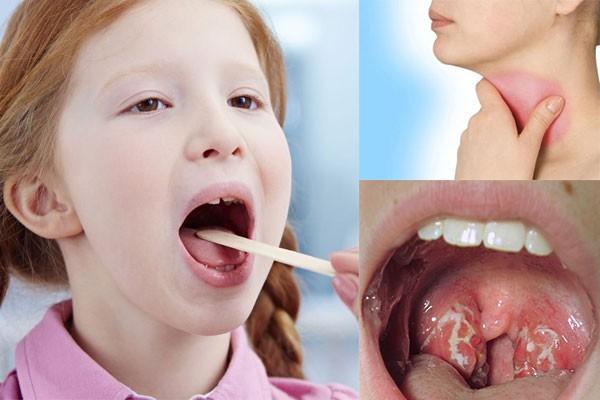 Người bị sưng amidan nên ăn những thực phẩm mát để không làm tổn thương cổ họng